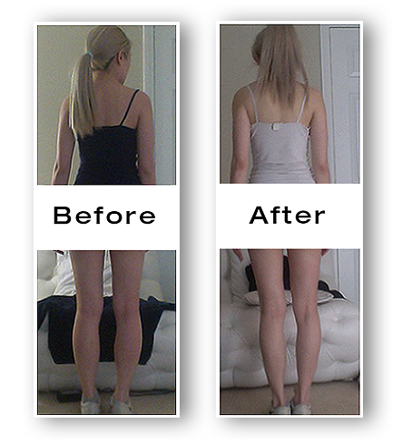 Lena Snow Before and After